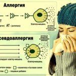 Аллергия и псевдоаллергия, обнаружить обман!