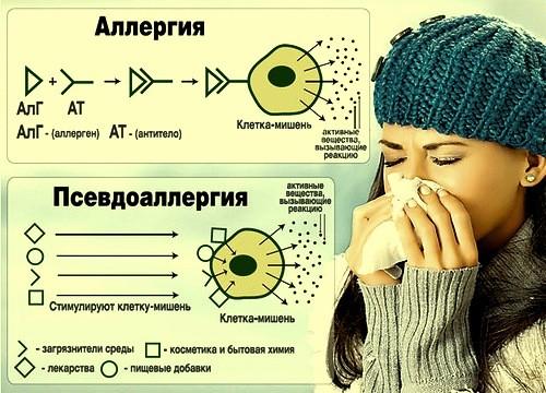 аллергия и псевдоаллергия отличия