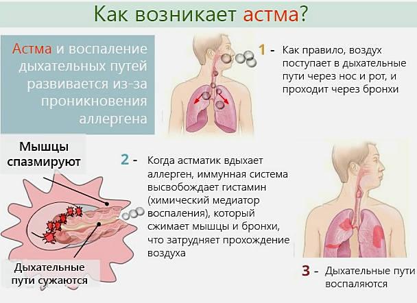 аллергичекая бронхиальная астма