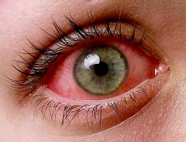 против аллергии глаз