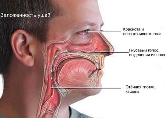 Аллергический ринит: причины, симптомы, лечение и профилактика