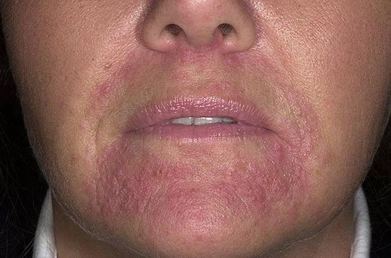 периоральный дерматит - симптомы, лечение
