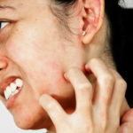 Аллергия на нервной почве — симптомы и лечение нервной аллергии