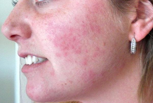 аллергия на нервной почве фото лечение