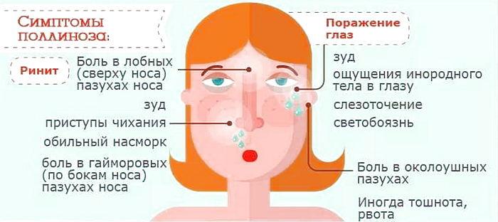 симптомы поллиноза - аллергии на цветение
