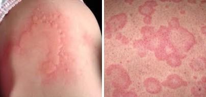 проявления холодовой аллергии