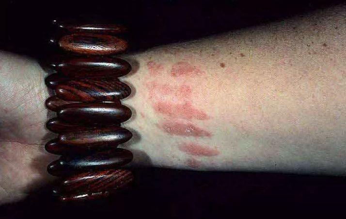 симптомы аллергического контактного дерматита