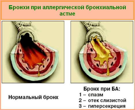 бронхи при аллергической форма бронхиальной астме