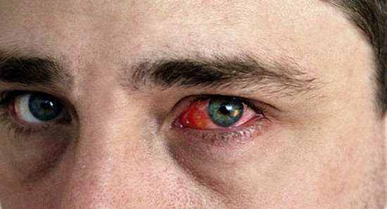 аллергический конъюнктивит - симптомы. лечение