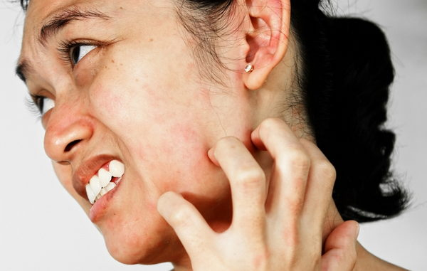 аллергия на нервной почве - симтомы