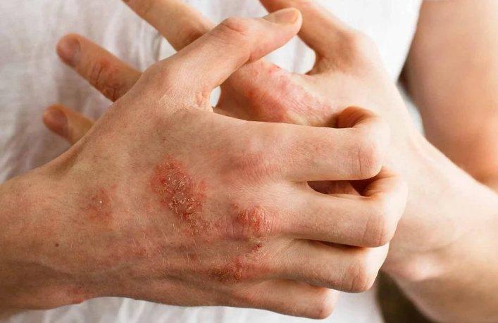 аллергическая экзема - симптомы