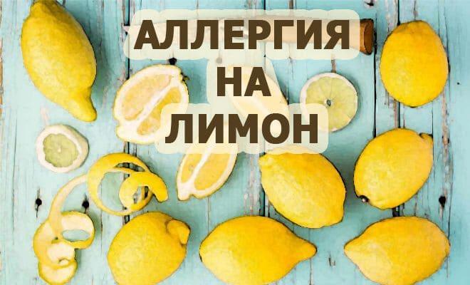 Allergija-na-limon